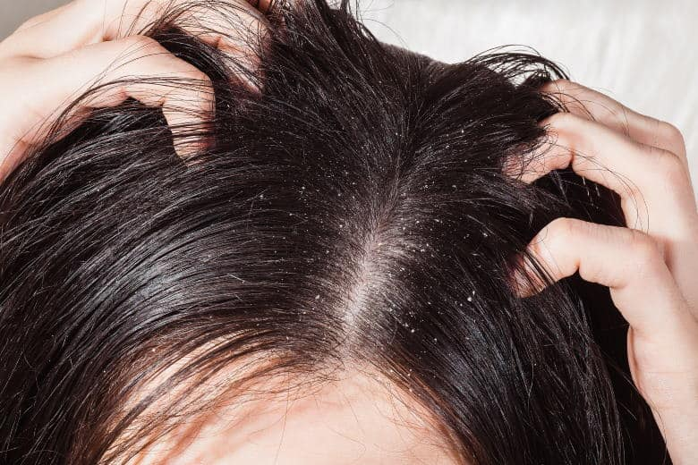 itchy scalp with dandruff